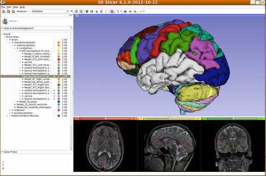 3D Slicer view of brain